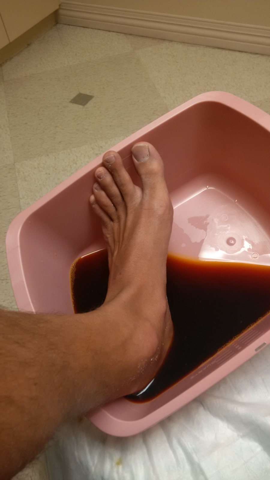 My Foot in Iodine @ the ER